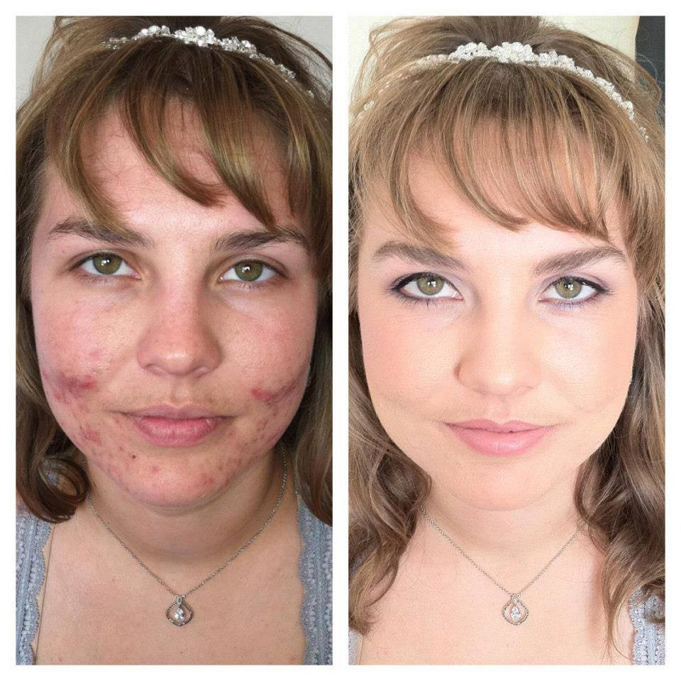 Emily Miller Before and After Contest Winners
